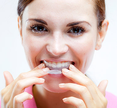 Woman using at-home teeth whitening kit