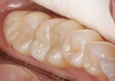 Tooth-colored fillings after