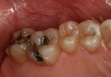 Two teeth with metal fillings
