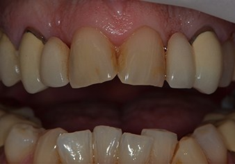 Closeup of discolored and damaged front teeth