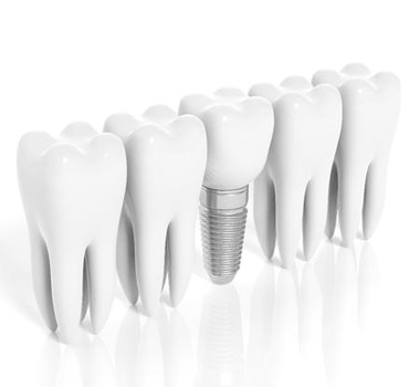 Molars and dental implant