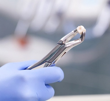 A dentist holding an extracted tooth.