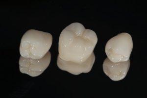 dental crowns near Tryon